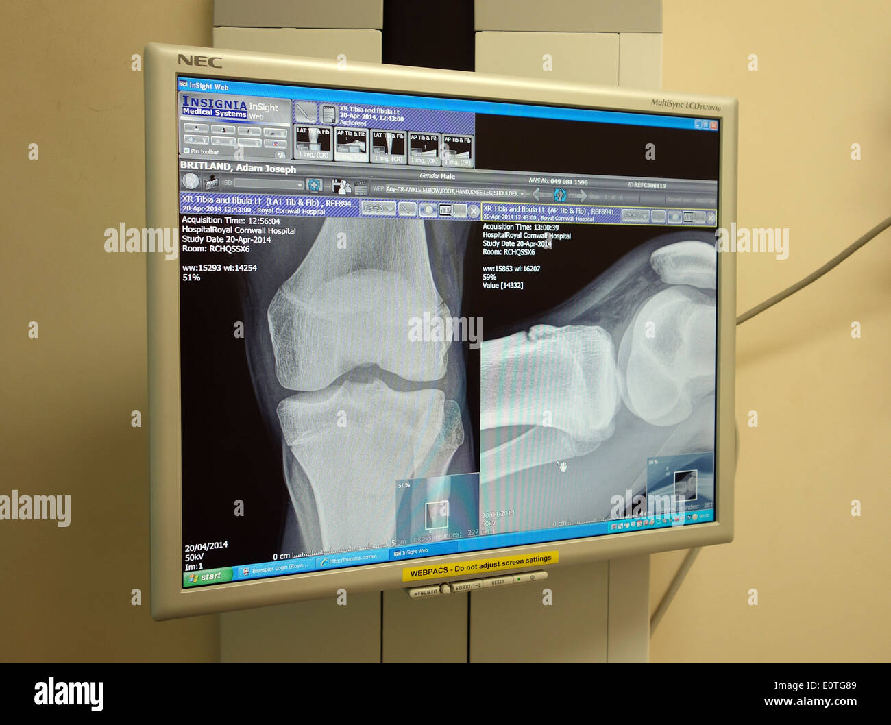 a patients xray image on a screen in a hospital consulting room - Stock Image