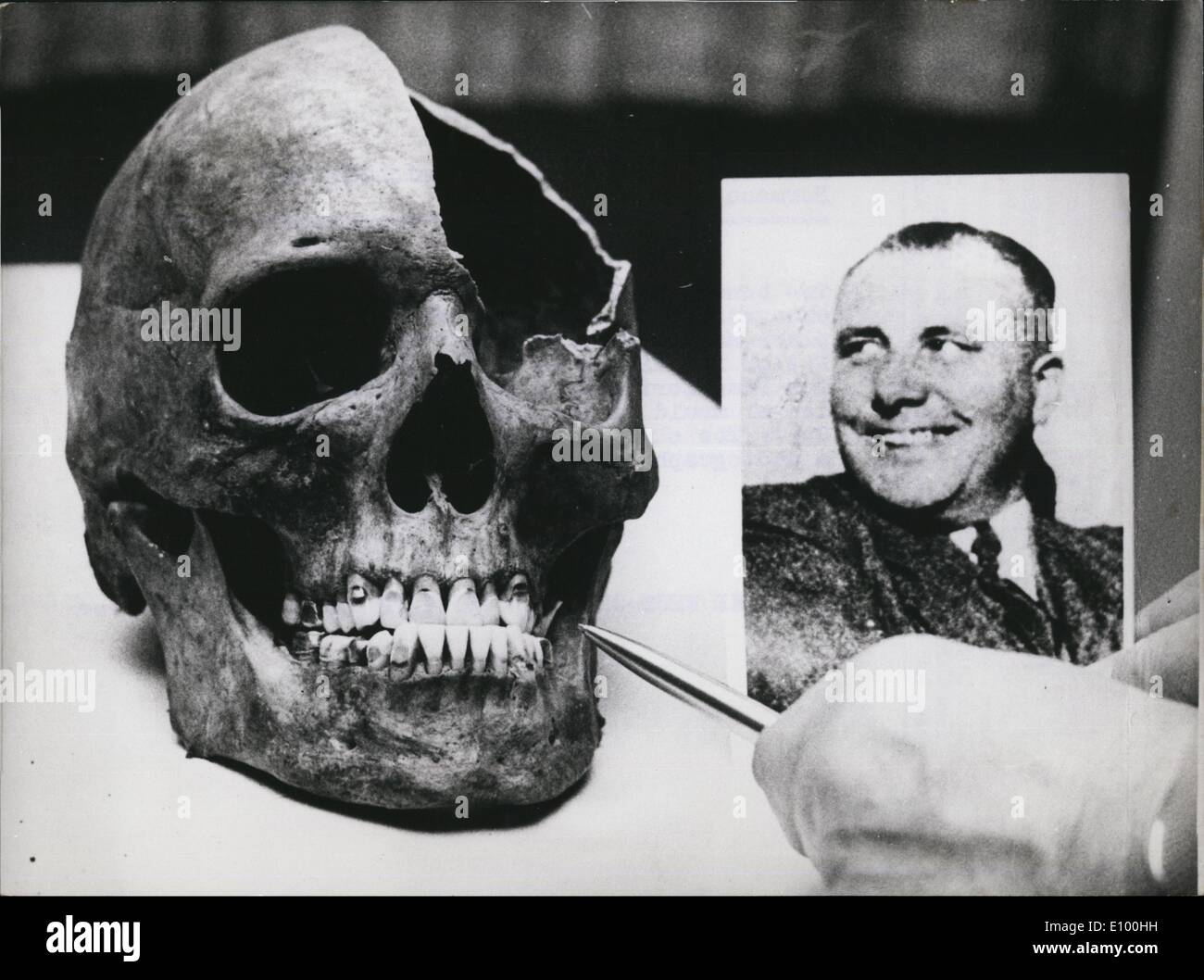 Feb. 02, 1972 - New Trace in the case of ''Reichsleiter'' martian Bormann?: Two bones, a skull and upper thigh were found in excavations in Berlin, Leghorn Station,. At this place Martin Bormann, the ''Substitute'' of Adolf Hitler is said to be killed on his flight 1945.The Frankfort public prosecutor's office sent the dental mould of the Nazi leaders to Berlin. Photo shows The skull with well-conserved teeth and a photograph of the ''Reichslioter' - Stock Image