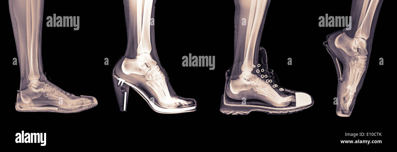 X-ray of a woman's foot in 4 different shoes (from left to right) Trainers, High Heel, Running and Ballet - Stock Image