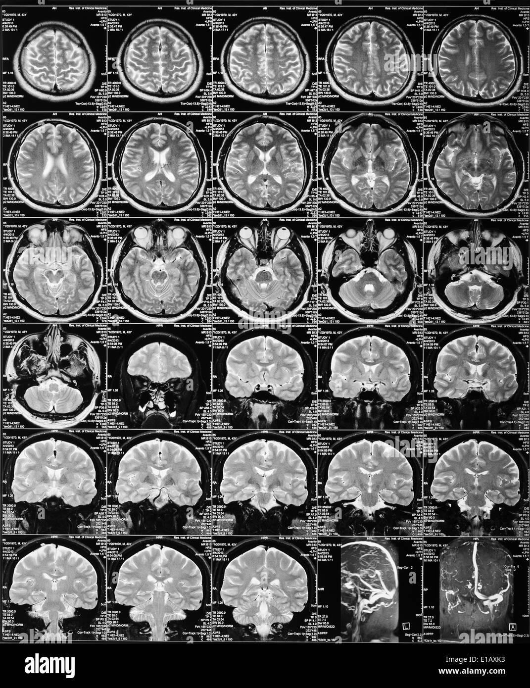 MRI of the brain. skull X-ray - Stock Image