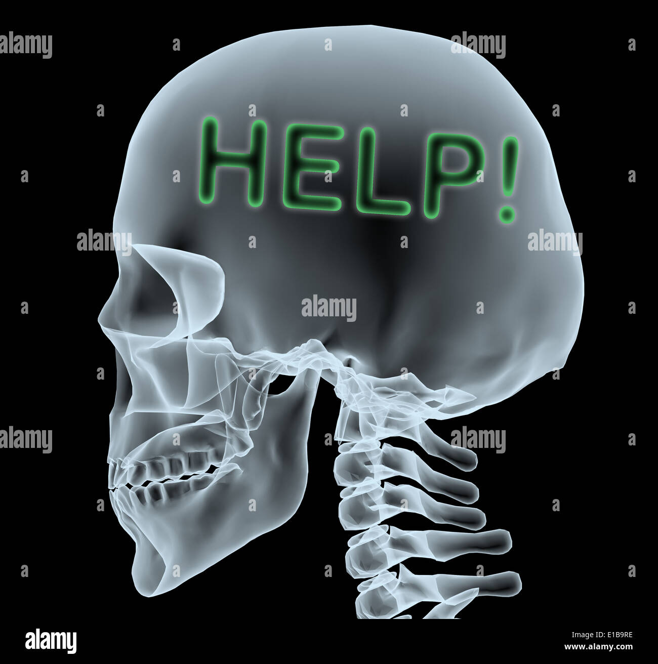 X-ray of a head with help written, 3d illustration - Stock Image