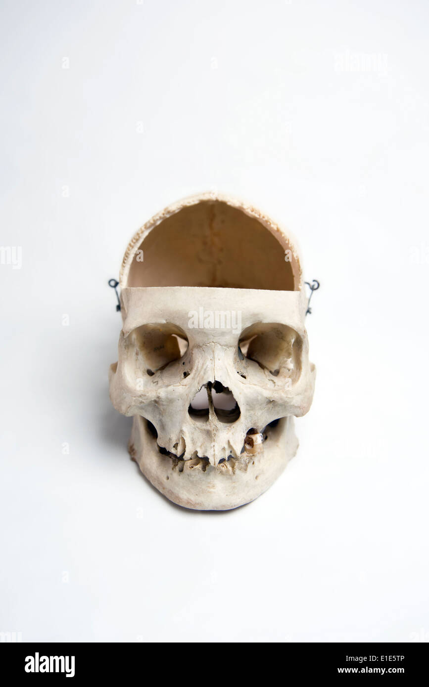 Genuine Human Skull with trephination and front quarter removed used for Medical Studies - Stock Image
