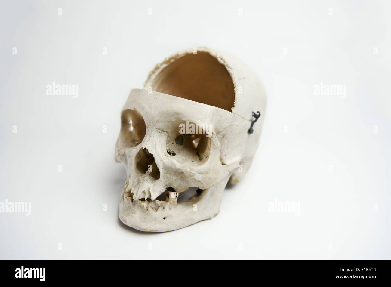 Genuine Human Skull with the front quarter removed used for Medical Studies - Stock Image