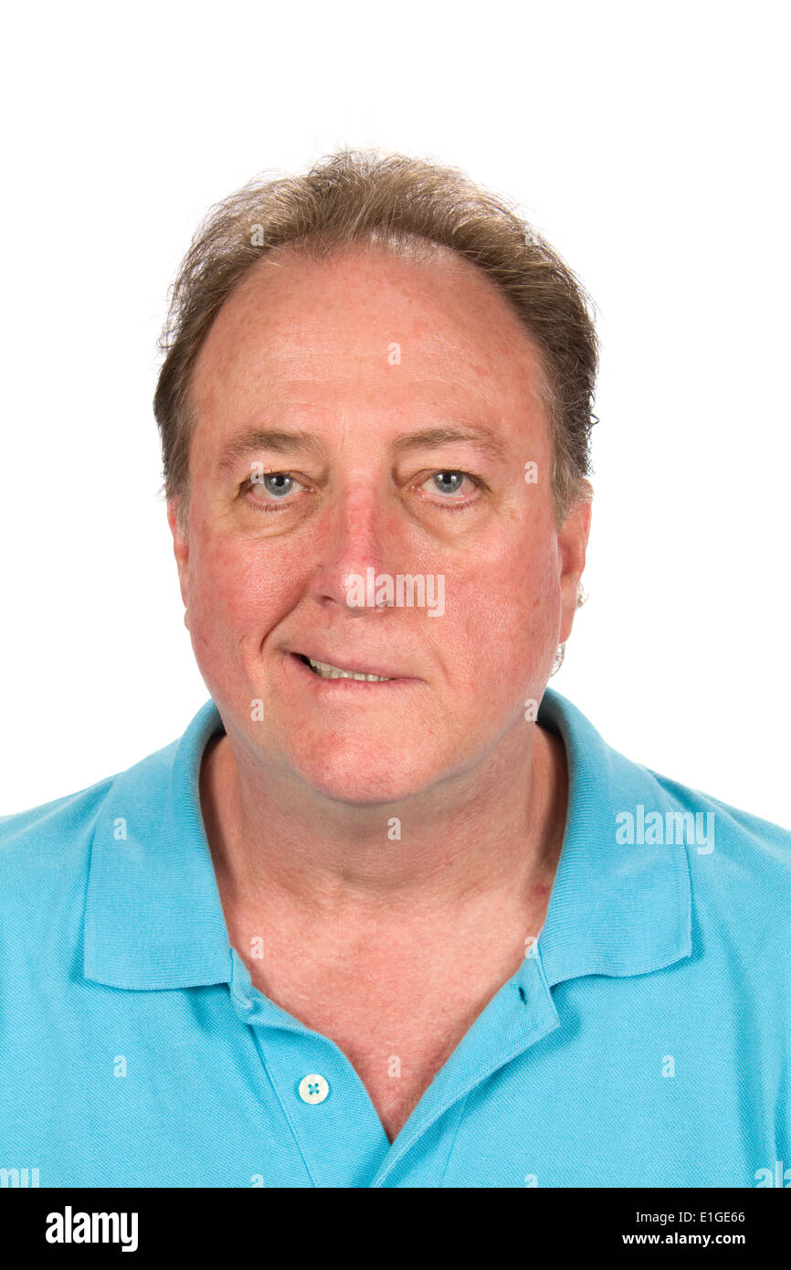 Adult male with the distorted facial affliction of Bell's palsy. - Stock Image