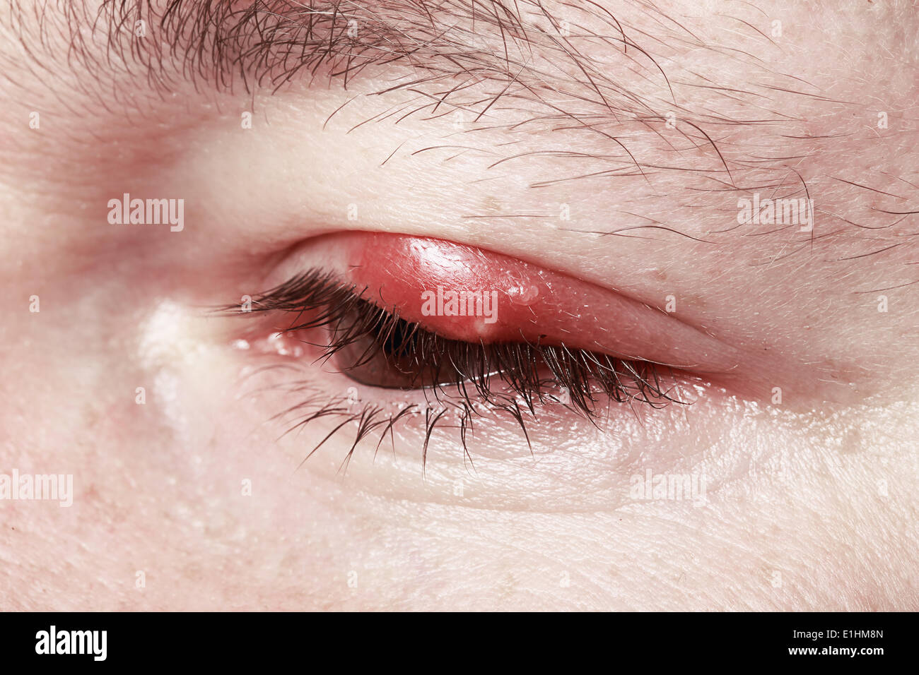 Sore Red Eye. Chalazion and Blepharitis. Inflammation - Stock Image