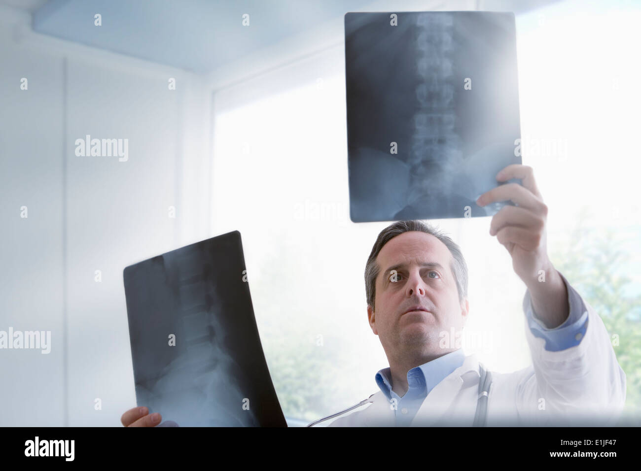 Doctor studying x-rays - Stock Image