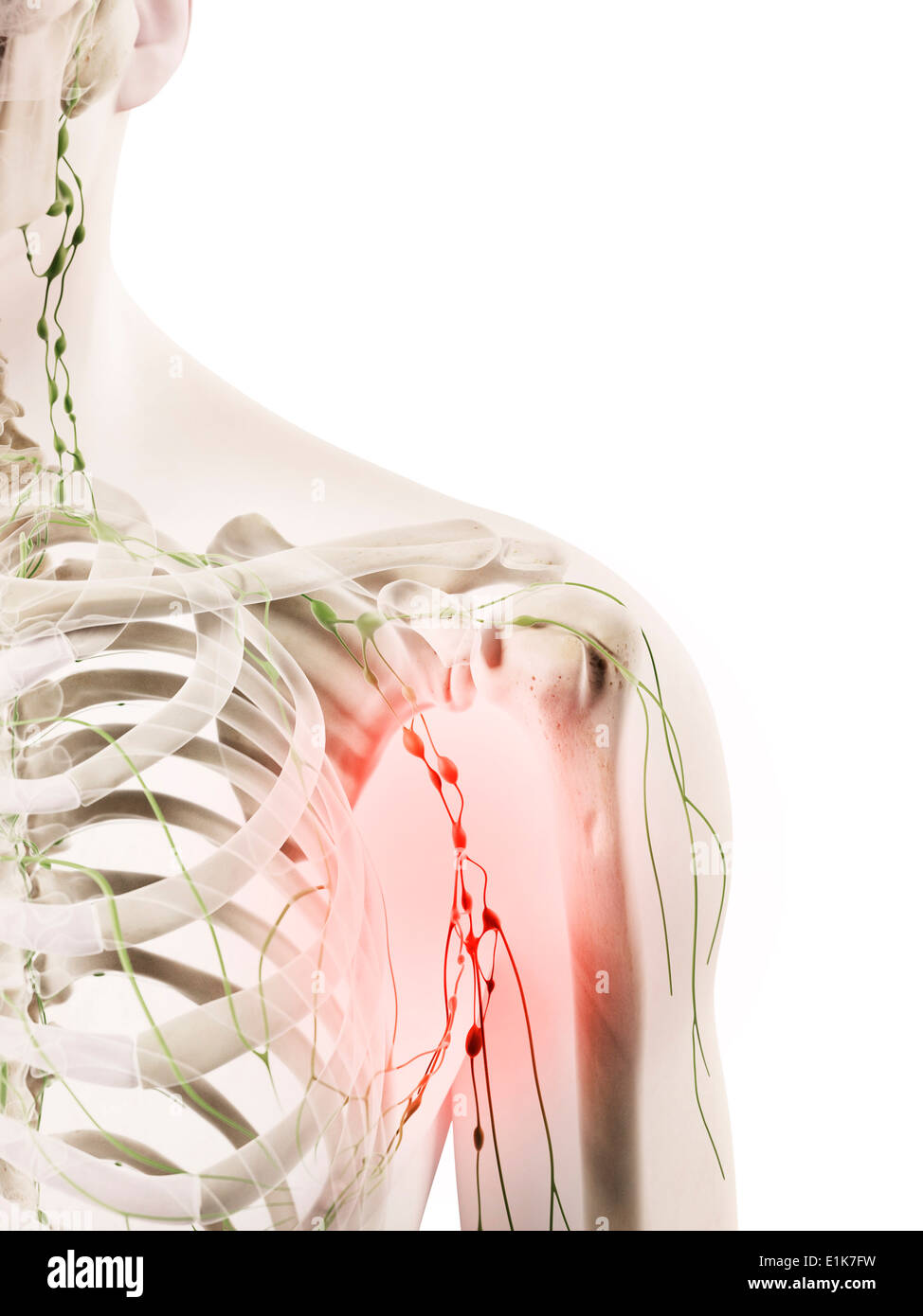 Inflamed Lymph Nodes Stock Photos Inflamed Lymph Nodes Stock
