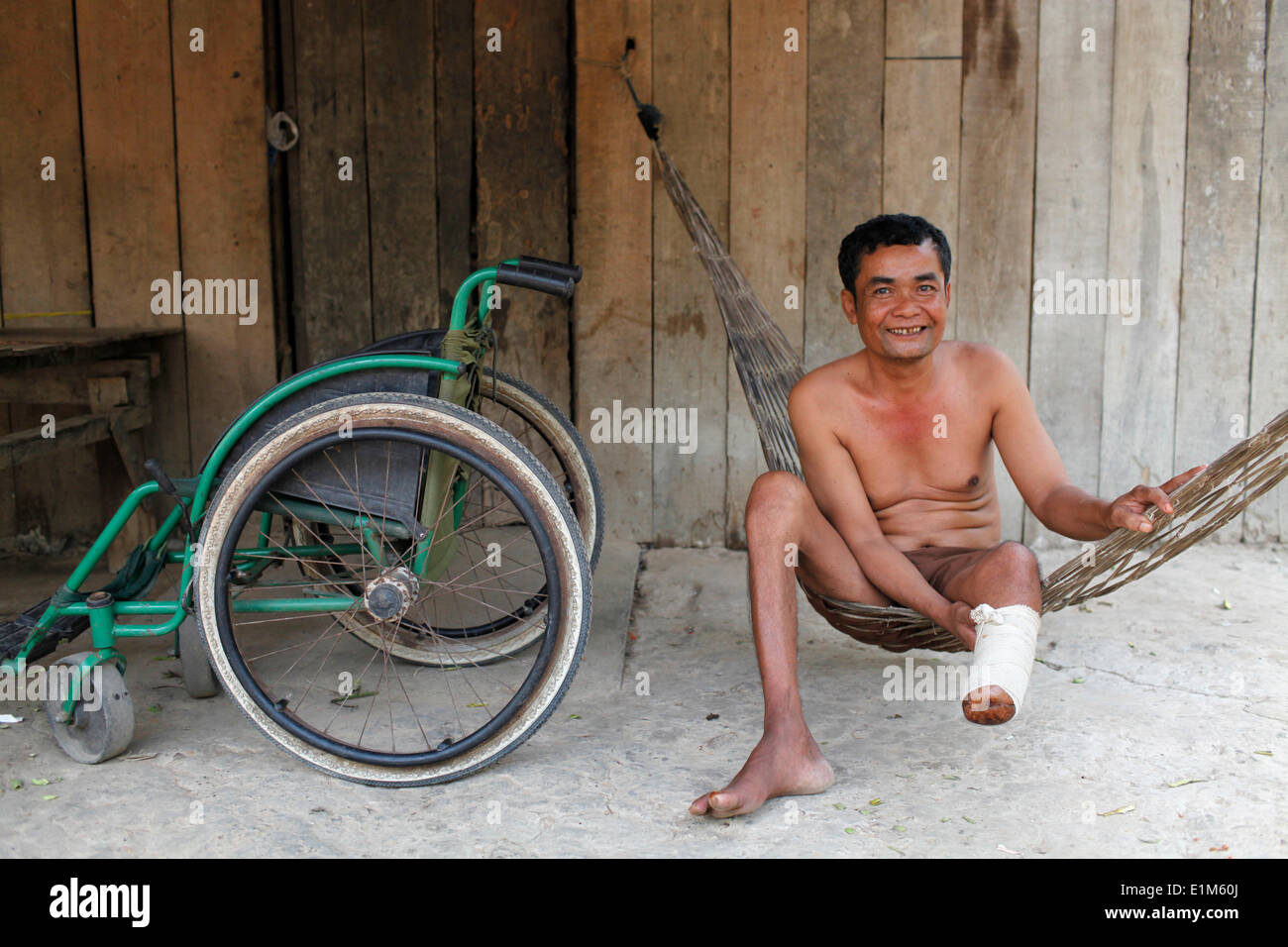 Crippled Cambodian villager - Stock Image