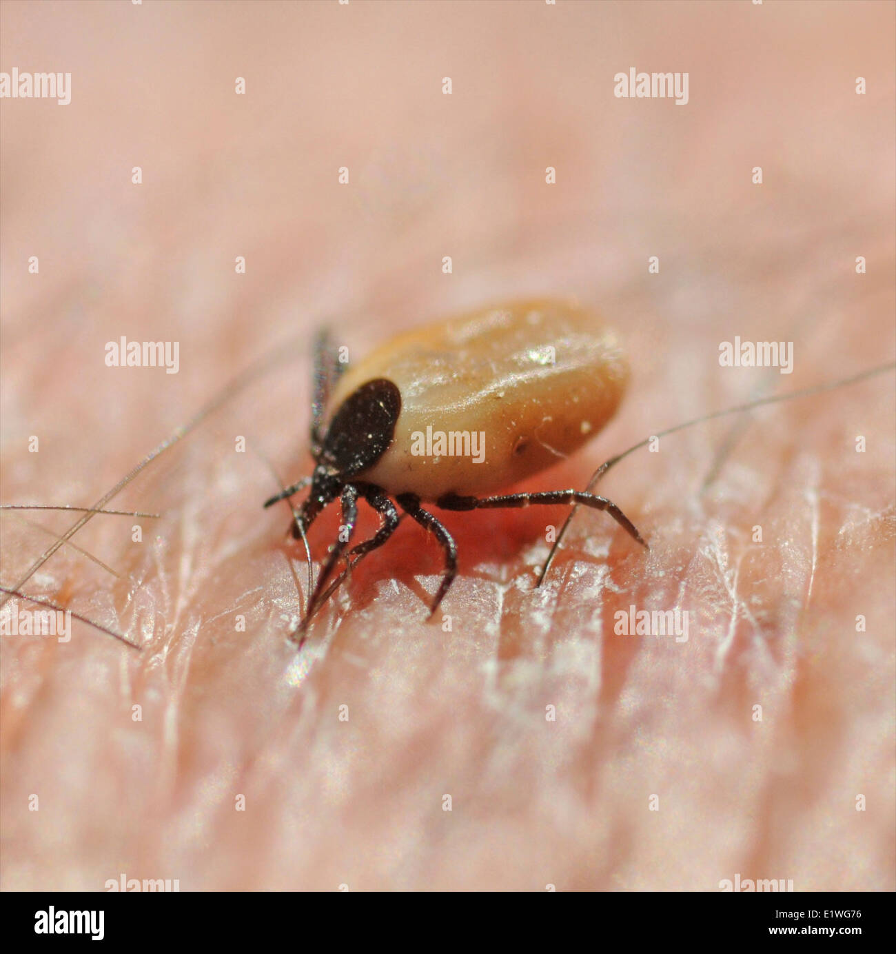 Tick Control - Facts for How to Get Rid of Tick