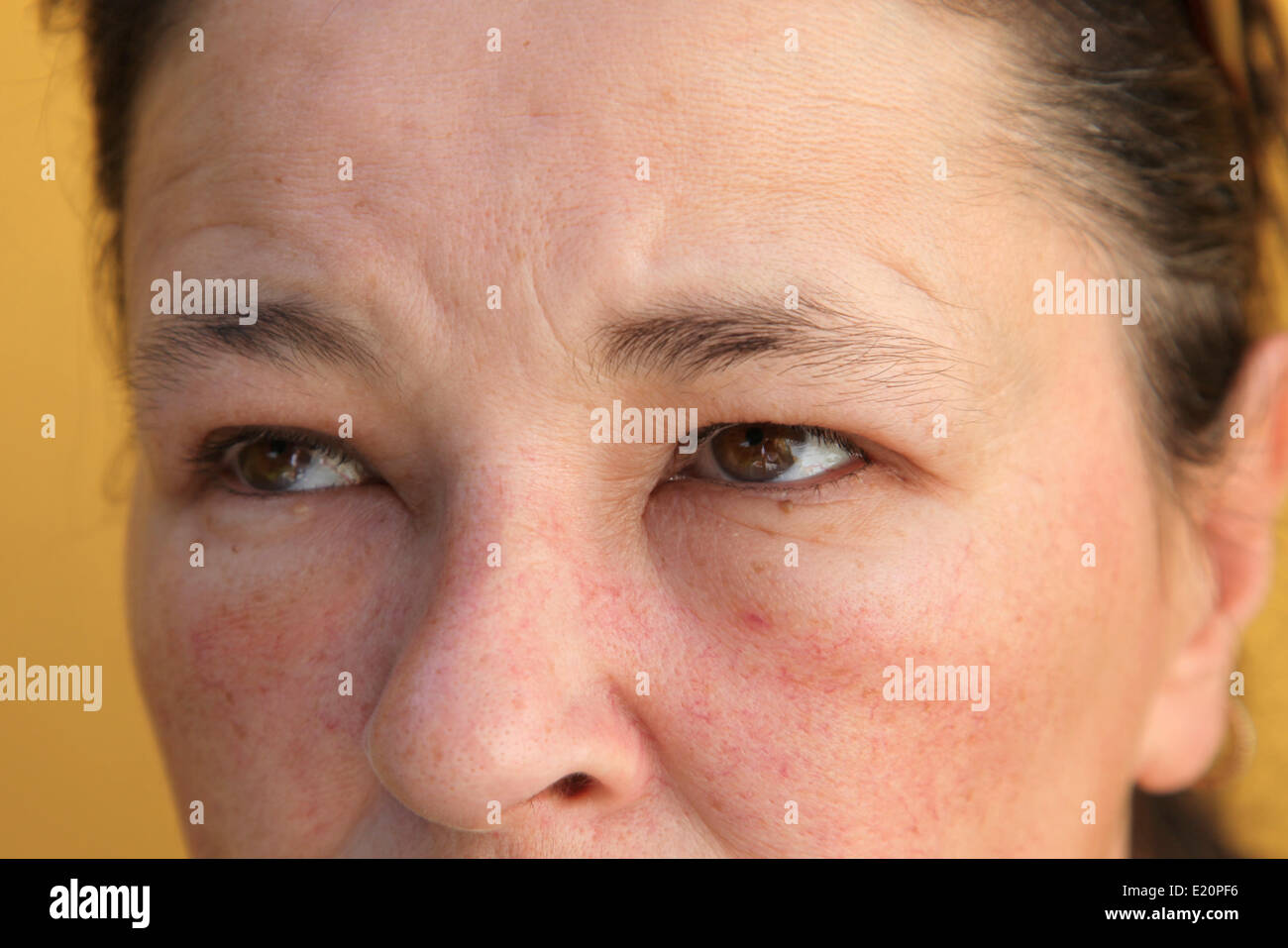 Allergies - swollen eyes and face Stock Photo