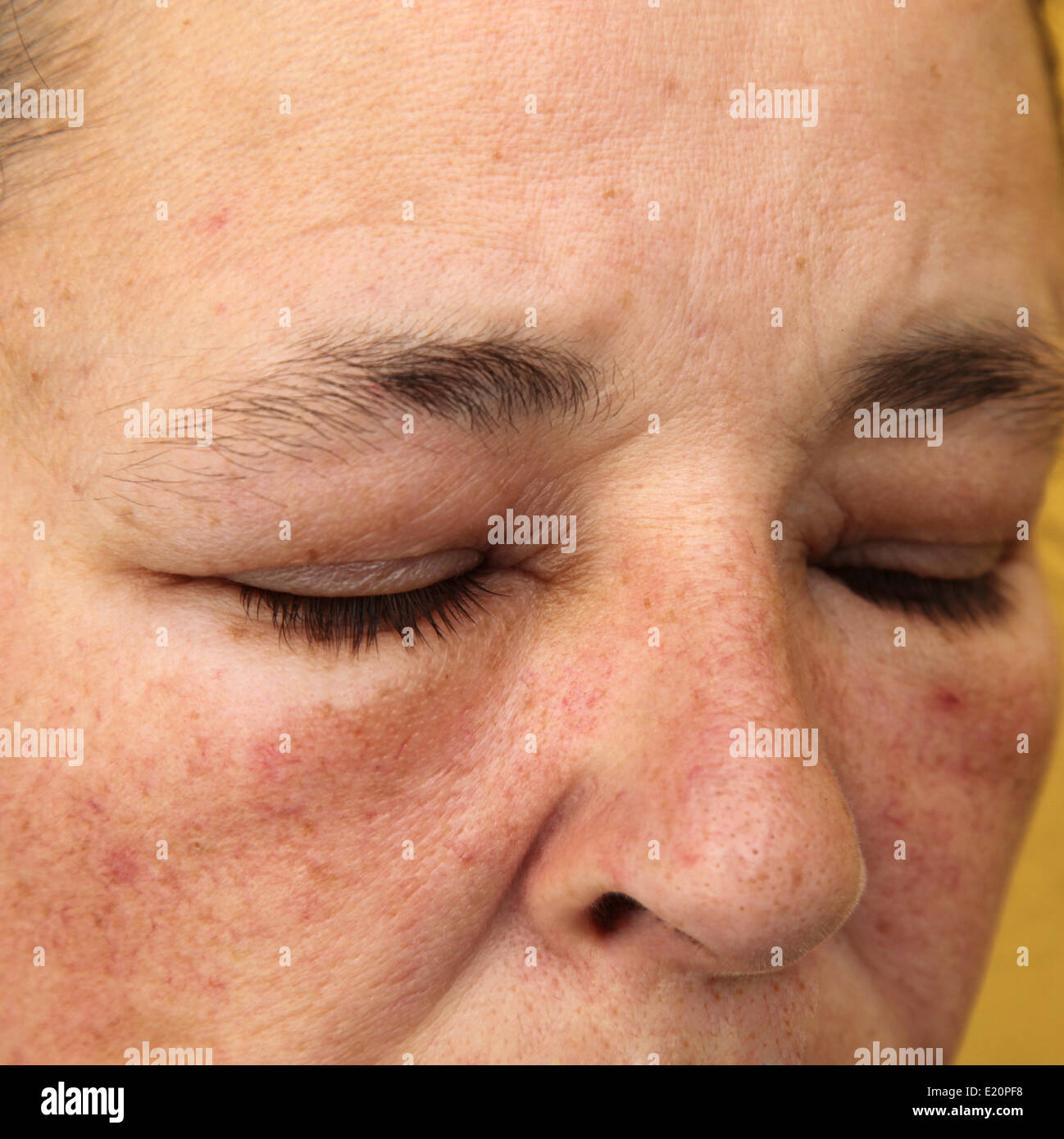 Swollen eyes and face for allergy Stock Photo