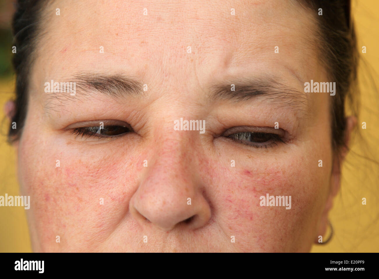 Allergy or conjunctivitis - close-up Stock Photo