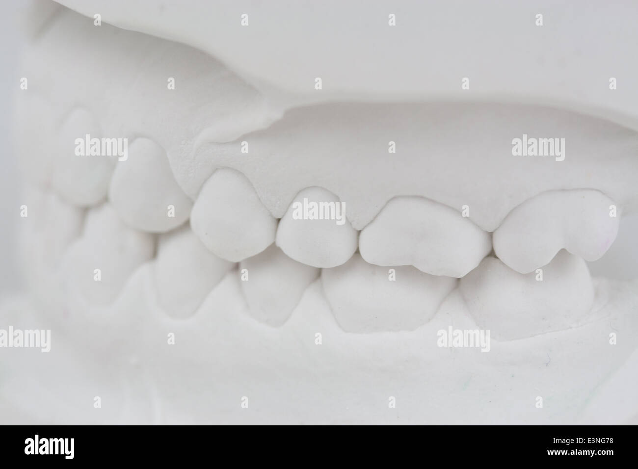 Backenzähne Gipsabdruck - Stock Image