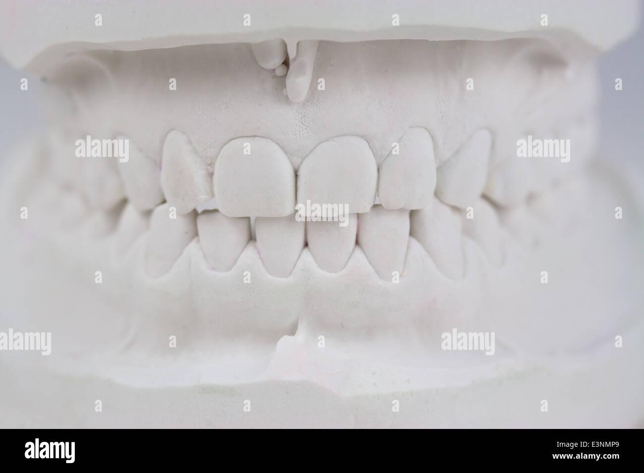 Zahnmodell Gipsabdruck - Stock Image