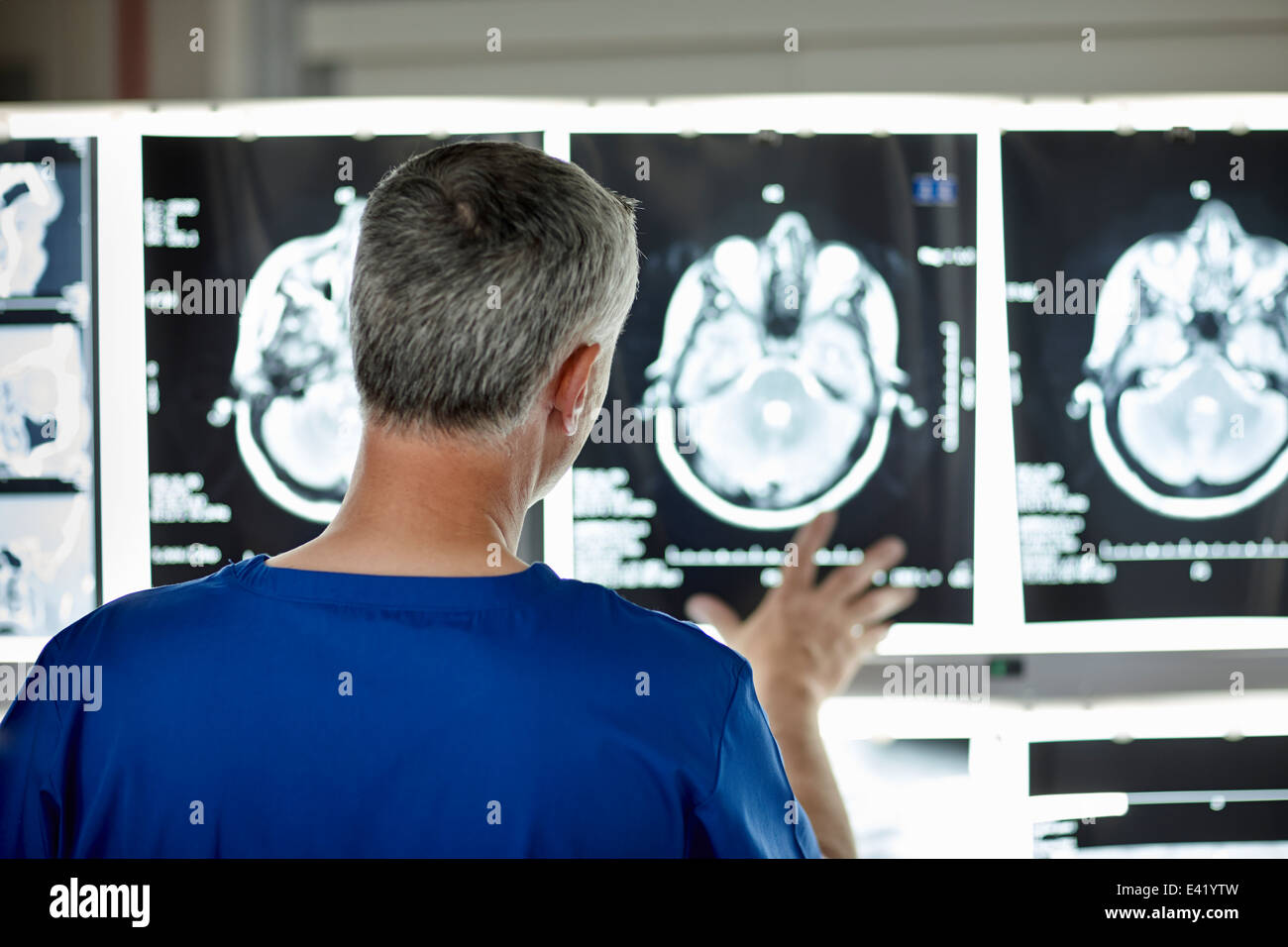 Radiologist looking at brain scans - Stock Image