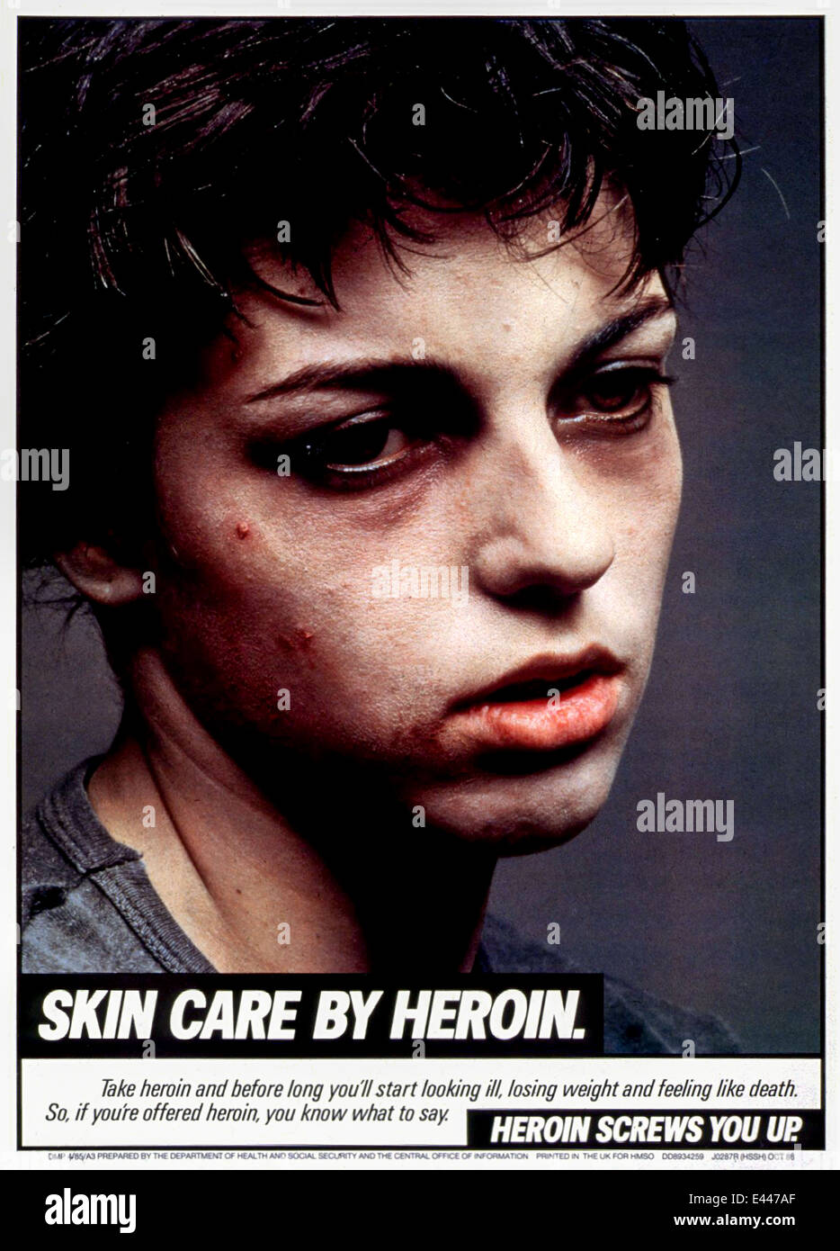 """""""Skin Care by Heroin."""" Part of the """"Heroin Screws You Up"""" drug awareness campaign. 1986 poster featuring a young Stock Photo"""