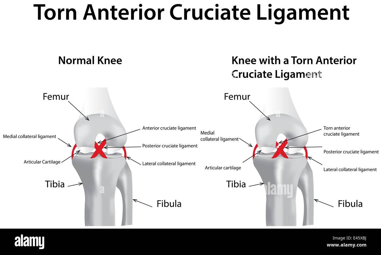Torn Anterior Cruciate Ligament - Stock Image