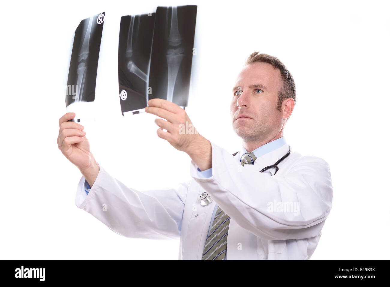 Doctor comparing two x-rays - Stock Image