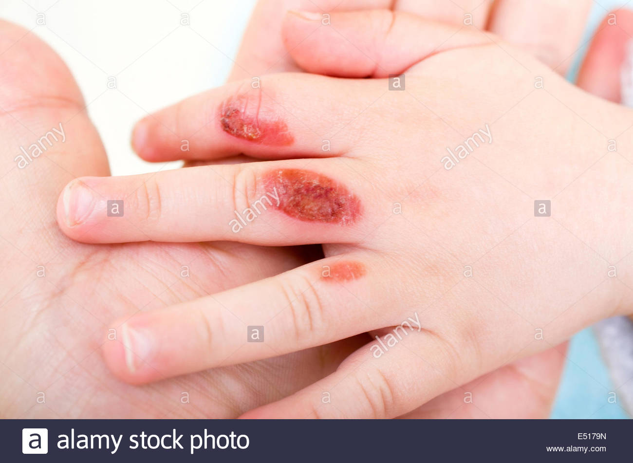 Burn Injuries Stock Photos Burn Injuries Stock Images Alamy