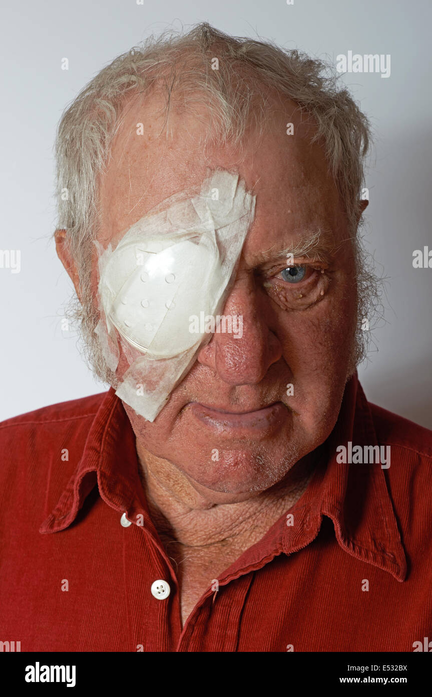 Patient recovering after cataract eye surgery - Stock Image