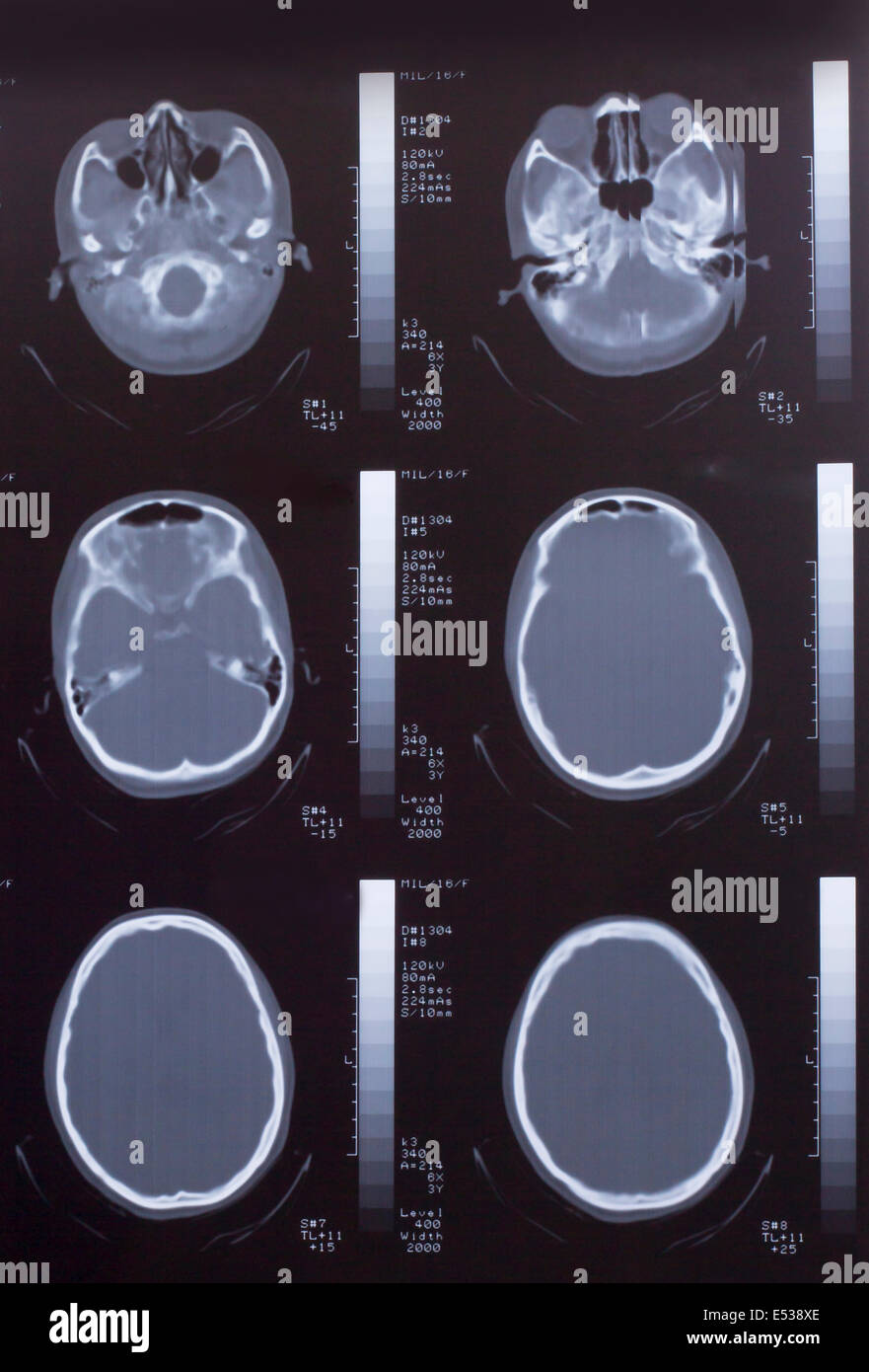 Closeup of a CT scan with brain - Stock Image