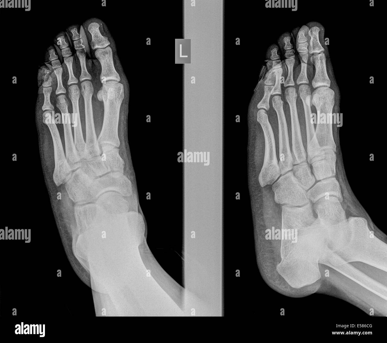 Foot Ankle Bones Anatomy Male Stock Photos & Foot Ankle Bones ...