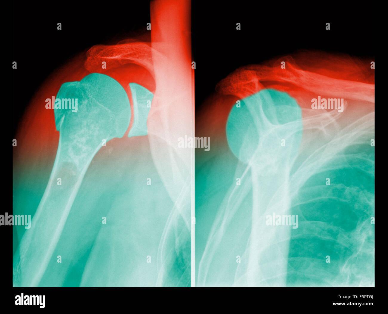 Dislocation Shoulder X Ray Stock Photos & Dislocation Shoulder X Ray ...