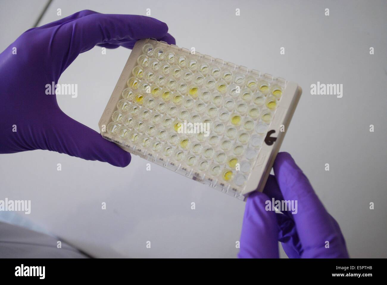 ELISA test plate used for serologic testing, research of antibodies and antigens in the blood. - Stock Image