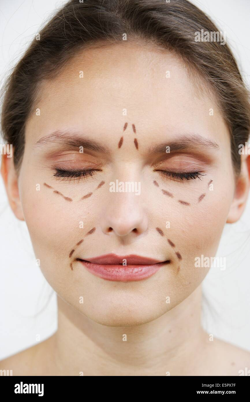 Woman marked for plastic surgery. - Stock Image