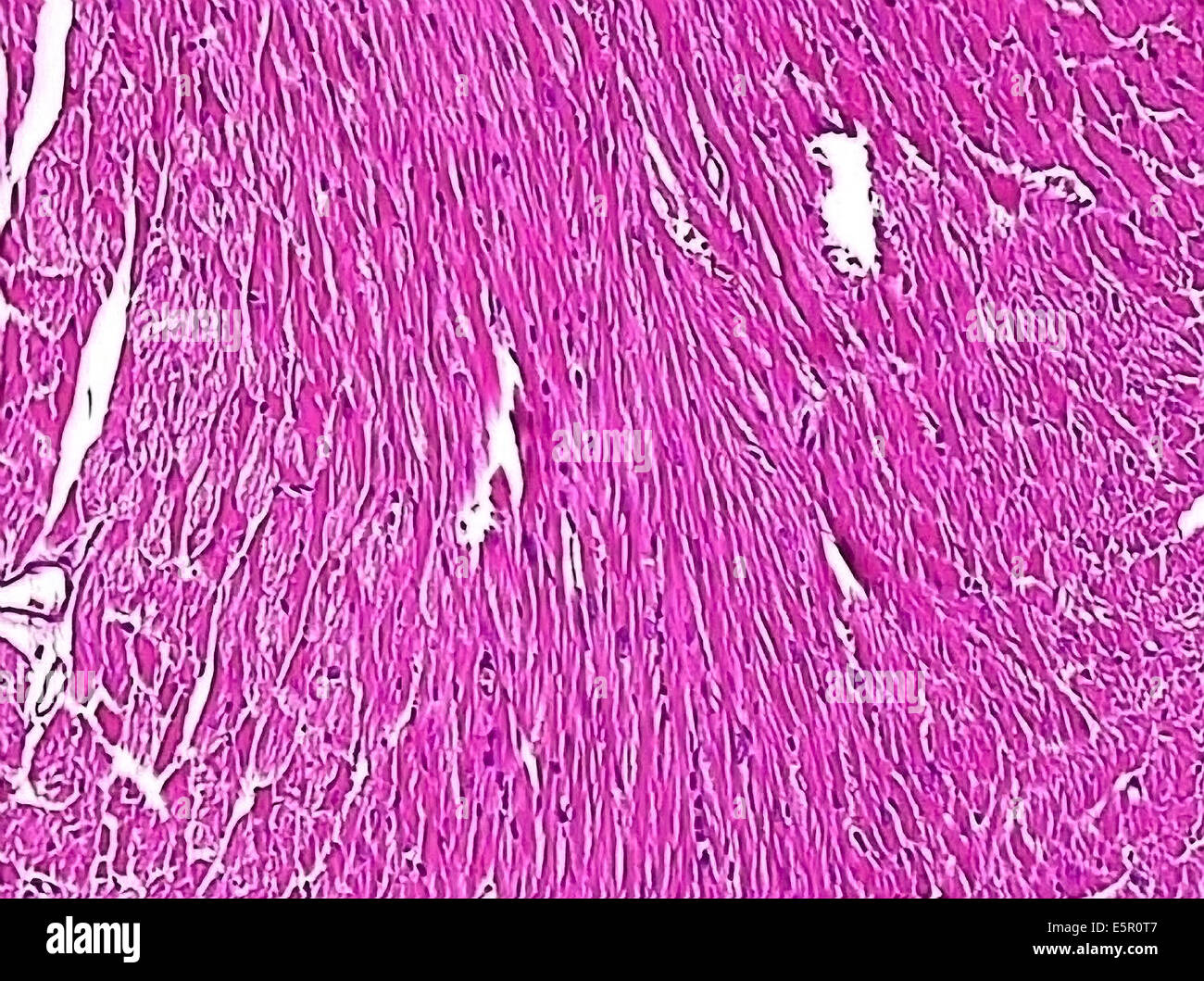 Cardiac Muscle Cell Stock Photos & Cardiac Muscle Cell Stock Images ...