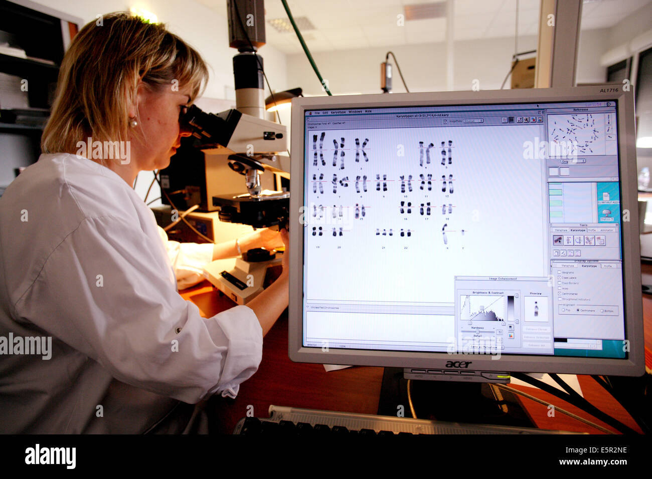 Antenatal diagnosis : study of a karyotype with Down syndrome Cytogenetics and reproductive biology unit, Limoges - Stock Image