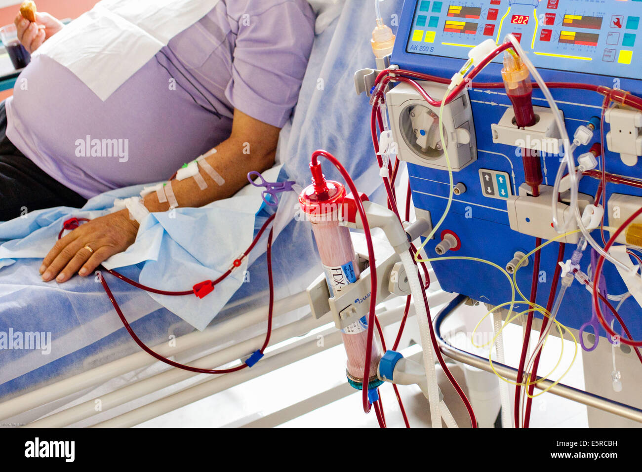 Patient hemodialysis and transfusion for anemia, Limoges hospital, France. - Stock Image