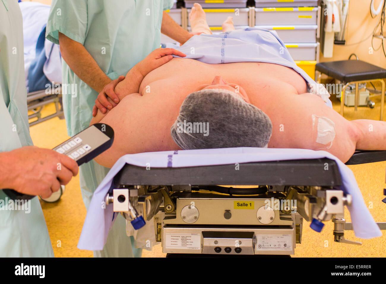 Obese female patient prior to Laparoscopic Sleeve Gastrectomy, Limoges hospital. - Stock Image