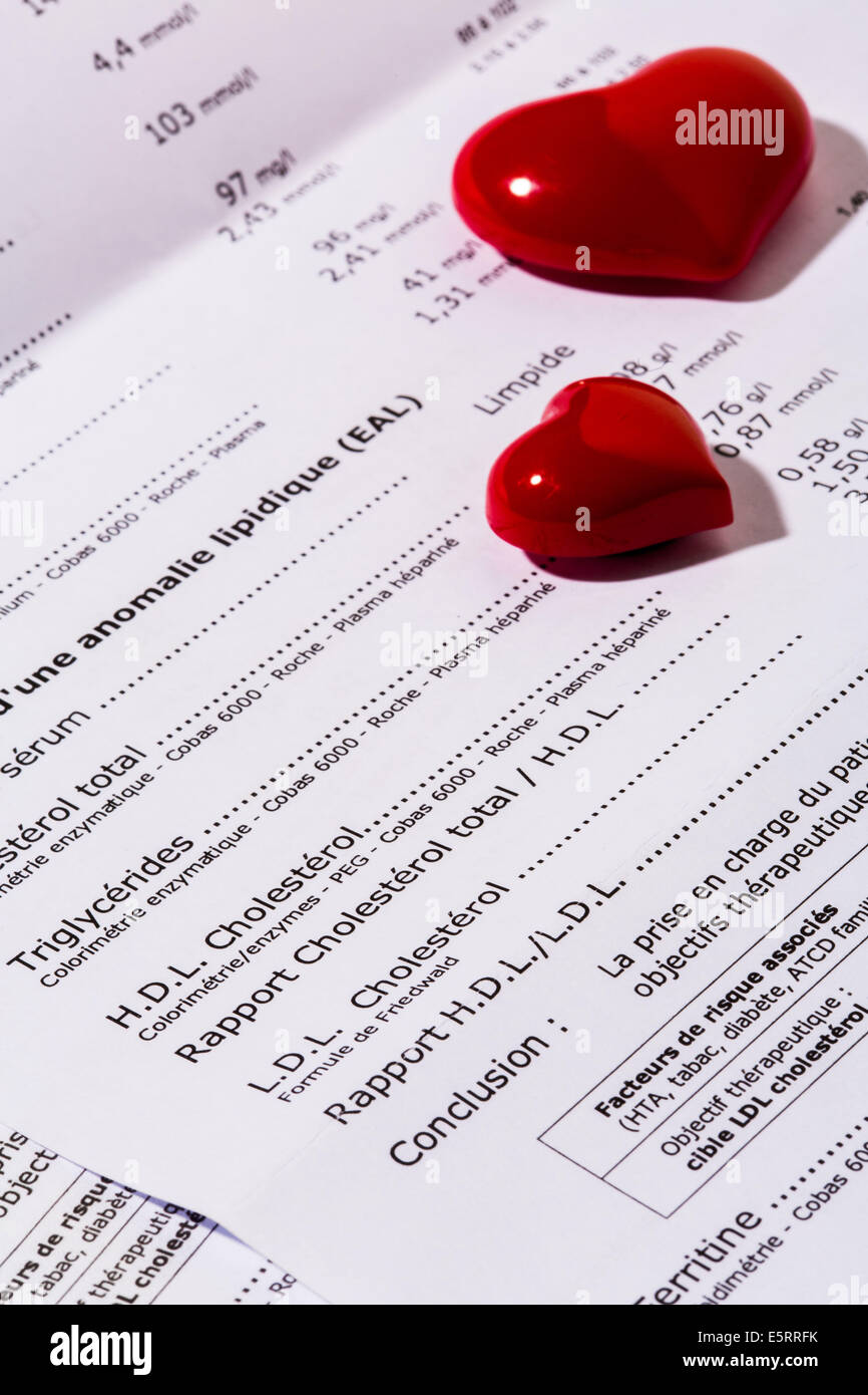 Lipid blood test result sheet with plastic hearts. - Stock Image