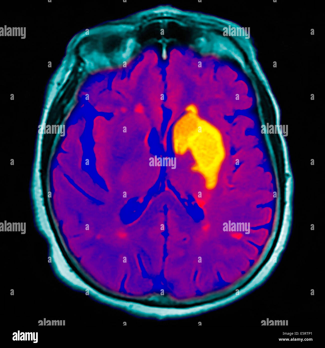 Coloured magnetic resonance imaging (MRI) scan and CT of an axial section through the brain of patient, showing - Stock Image