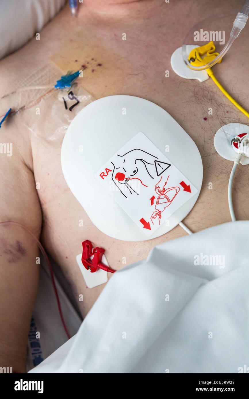 Defibrillation electrode, Intensive care department, Lagny Marne-la-Vallée hospital, France. - Stock Image