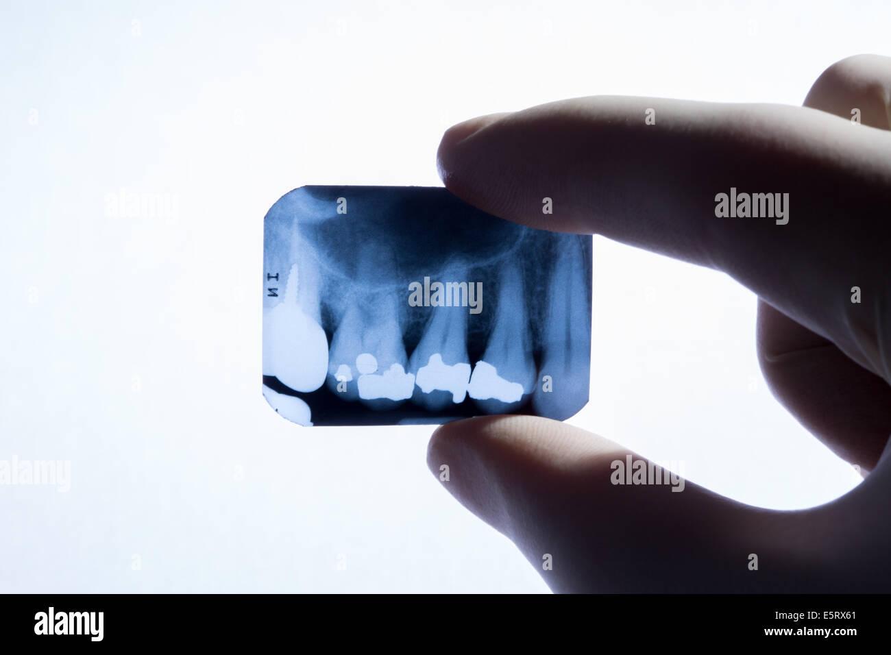 x-ray of teeth - Stock Image