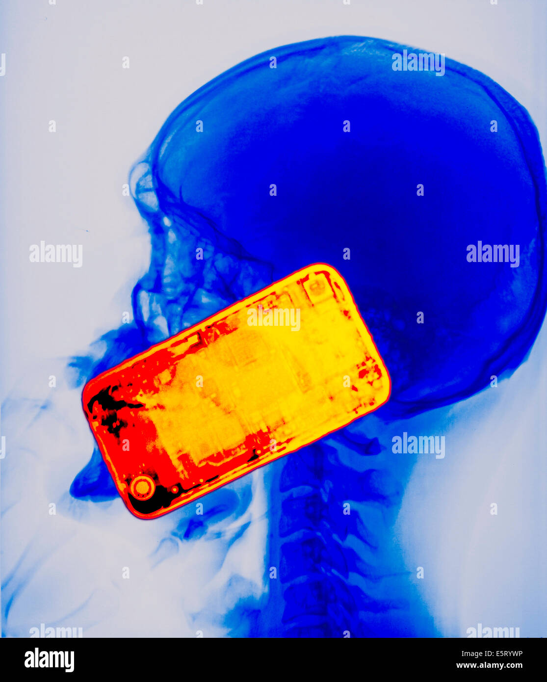Colored X-ray showing the head of a man using a smartphone. The use of mobile phone generates microwaves that penetrate - Stock Image