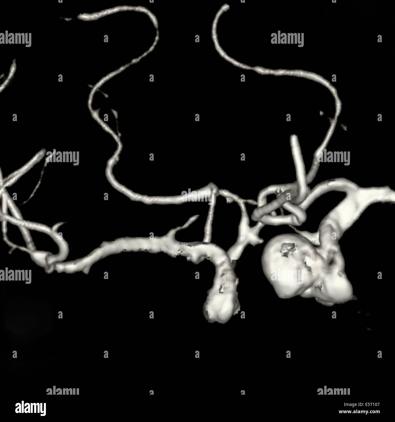 3D computed tomography (CT) scan of a pituitary adenoma by discovering multiple aneurysms. - Stock Image
