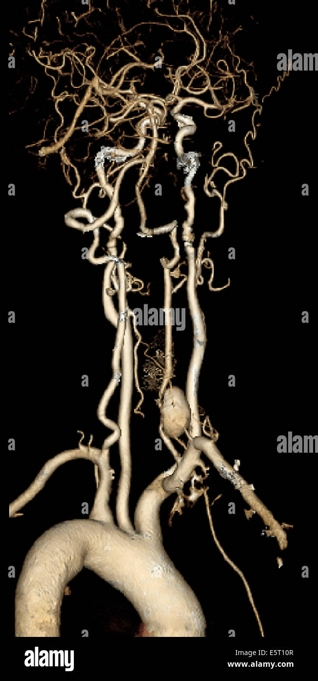 Vertebral artery aneurysm (bottom right) 3D CT-Angiography. - Stock Image