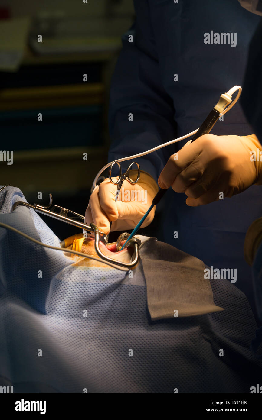 Treatment of snoring tonsillectomy (ablation of tonsils), Foch Hospital, Suresnes, France. - Stock Image