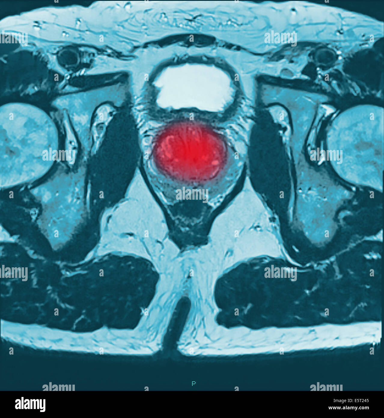 Magnetic resonance imaging (MRI) scan of a section through the pelvis of a with prostate cancer (red, at centre). - Stock Image