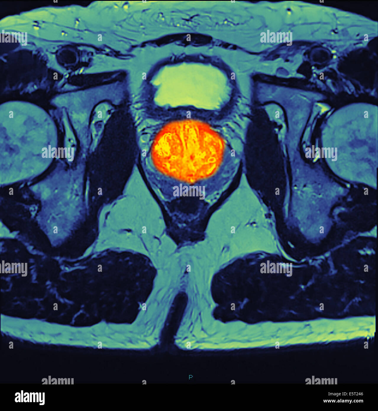 Magnetic resonance imaging (MRI) scan of a section through the pelvis of a with prostate cancer (orange, at centre). - Stock Image