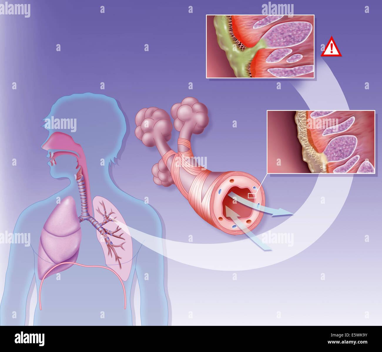 Bronchitis, drawing - Stock Image