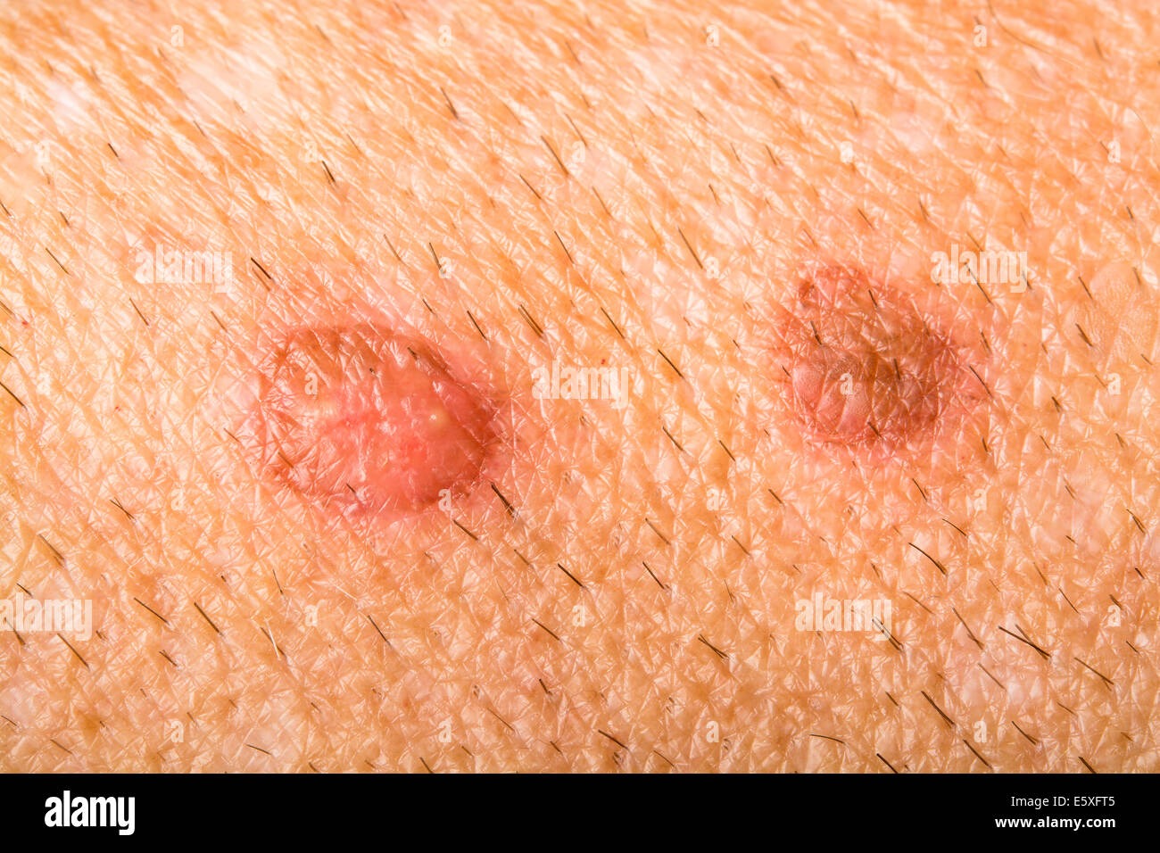 Sores on a human arm show the detail of the healing process by blistering and scabbing - Stock Image