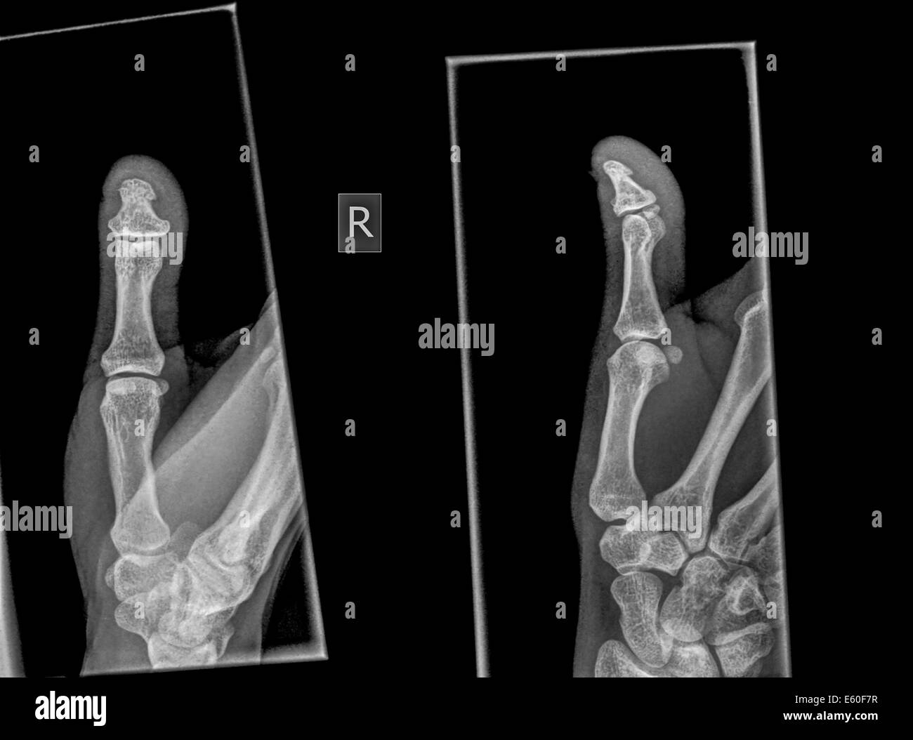 X-ray of a thumb with a broken distal phalanx - Stock Image