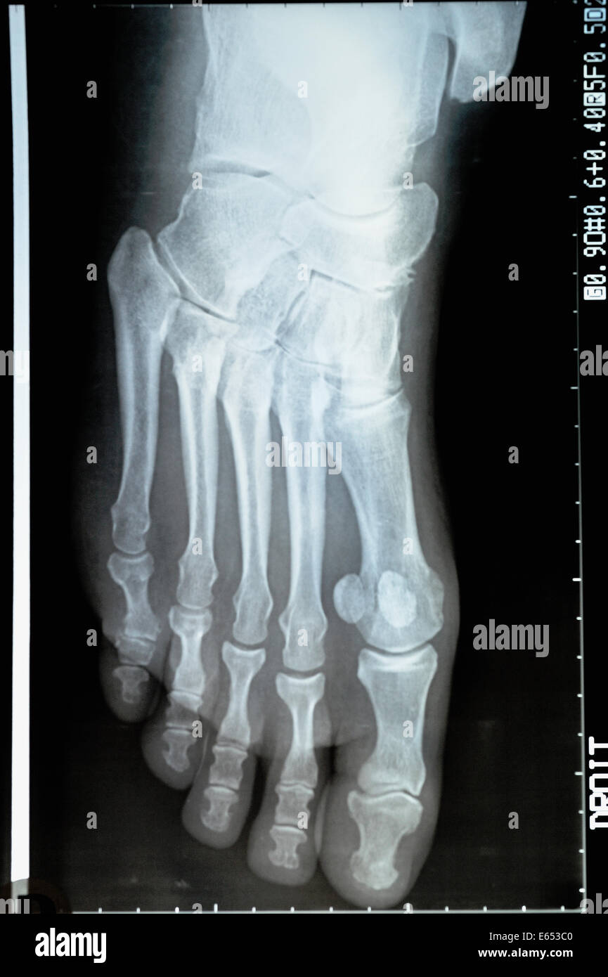 X-ray image of a mature woman's foot - Stock Image