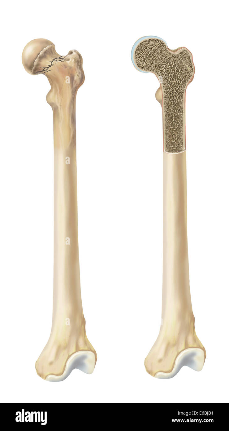 Head of femur fracture Stock Photo: 72785301 - Alamy