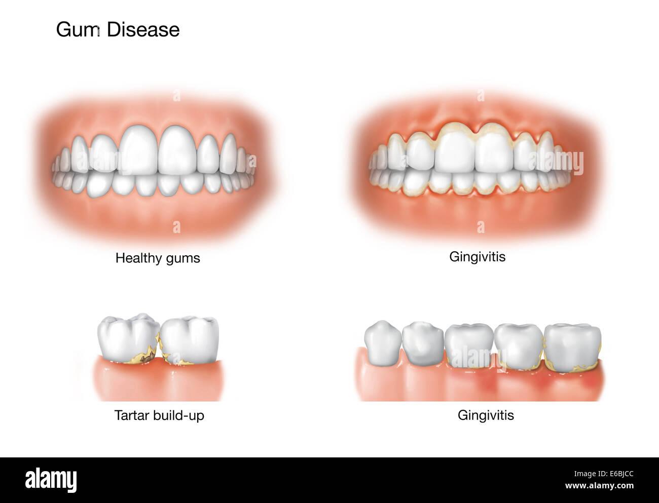 Comparison of healthy gums versus gingivitis Stock Photo ...