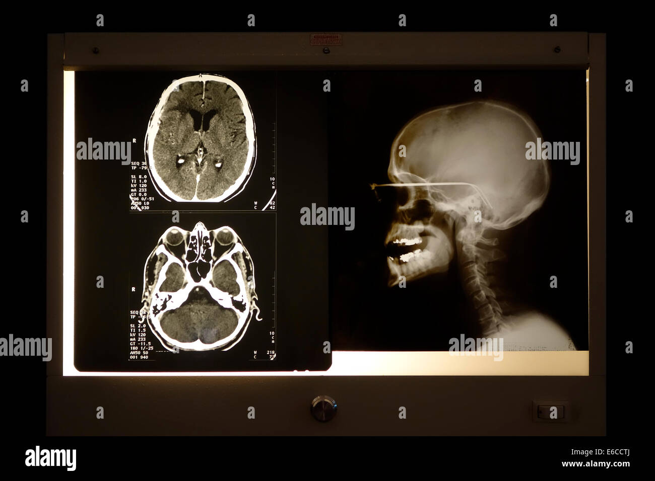 X-ray image of skull and cranial computed tomography scan viewed on light box - Stock Image